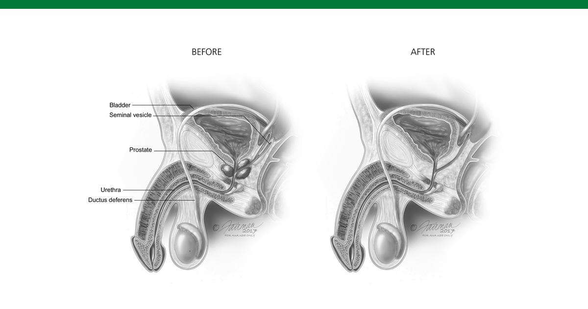 anatomia della prostata e prostata infiammata