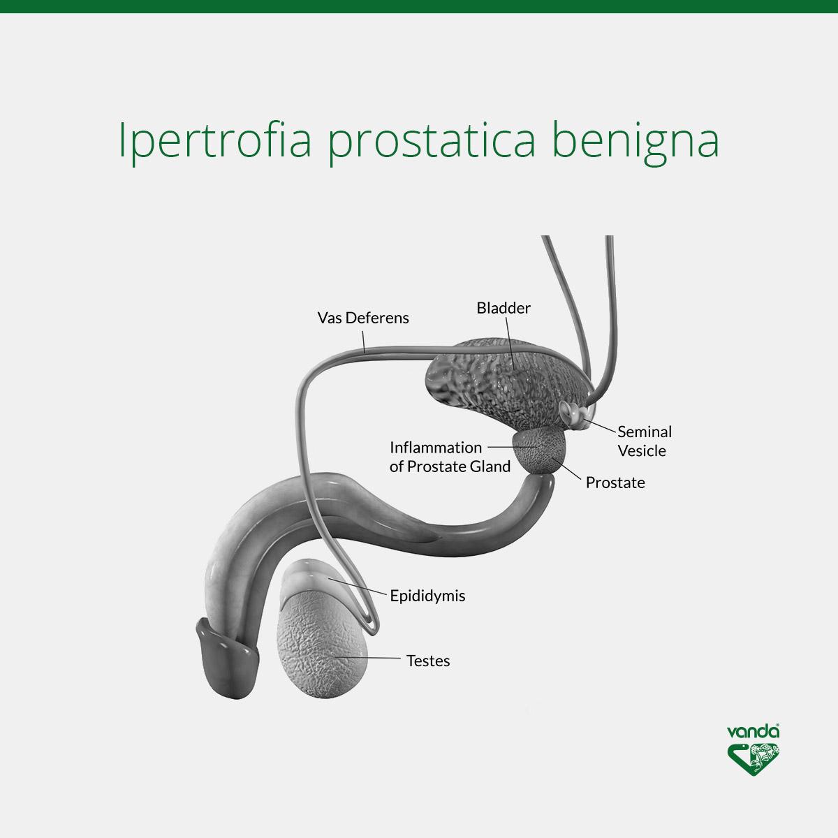 ipertrofia prostatica benigna prostata infiammata infografica