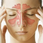 Omeopatia e sinusite. Materia medica omeopatica per le affezioni infiammatorie dei seni paranasali